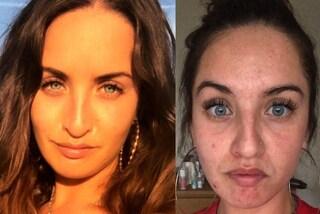 """""""Avvelenata"""" dal suo appartamento: a causa della muffa soffre di acne e perde i capelli"""