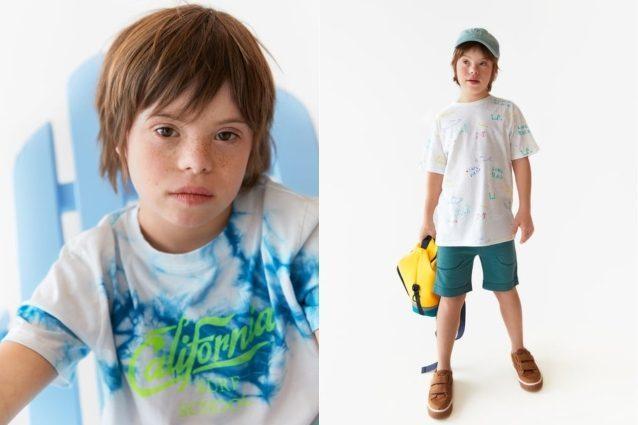 stile attraente grande sconto acquistare Patrick, il primo bambino con la sindrome di Down ...