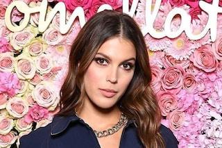 Miss Universo soffre di acne, mostra i brufoli e chiede ai fan consigli per combatterli