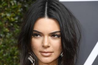 Kendall Jenner non si vergogna dei suoi brufoli: combatte l'acne con la positività