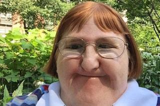 """Melissa, la blogger disabile definita """"troppo brutta per i selfie"""" risponde così alle critiche"""