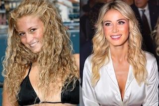 Diletta Leotta prima e dopo la chirurgia, le foto dell'evoluzione della conduttrice