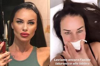 """Antonella Mosetti rimuove l'acido ialuronico dalle labbra: """"Erano diventate enormi"""""""