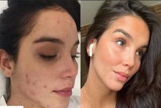 Paola Di Benedetto mostra i brufoli, così racconta la sua battaglia contro l'acne