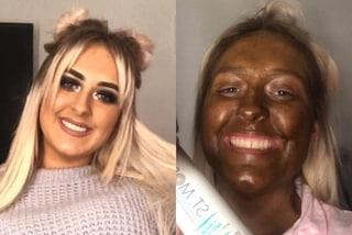 Usa l'autoabbronzante sbagliato, si ritrova con il viso marrone: il risultato è stato esilarante