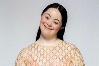 Ellie Goldstein non è testimonial Gucci: la sua bellezza non convenzionale va oltre gli stereotipi