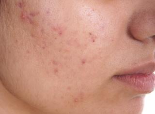 Brufoli sul viso, ecco la mappa dell'acne: perché compaiono in queste zone?