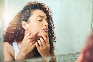 Brufoli sul mento: le cause della formazione e come eliminarli