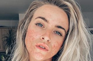 Le influencer sui social non nascondono più l'acne: Jess Mackenzie e le altre icone skin positive