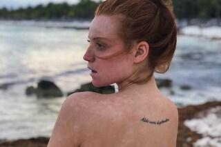 Ludovica Bizzaglia mostra i segni della malattia:«La bellezza è nella normalità delle imperfezioni»