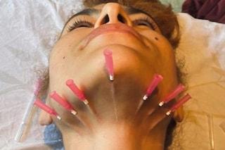 Aghi nel collo per rassodare la pelle: il trattamento di bellezza da brivido di Eva Mendez