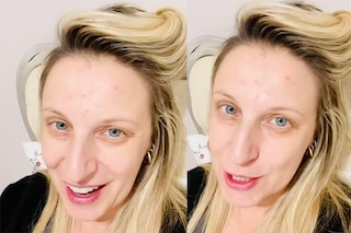 Katia Follesa si mostra struccata e con l'acne: così risponde alle critiche dopo essere dimagrita