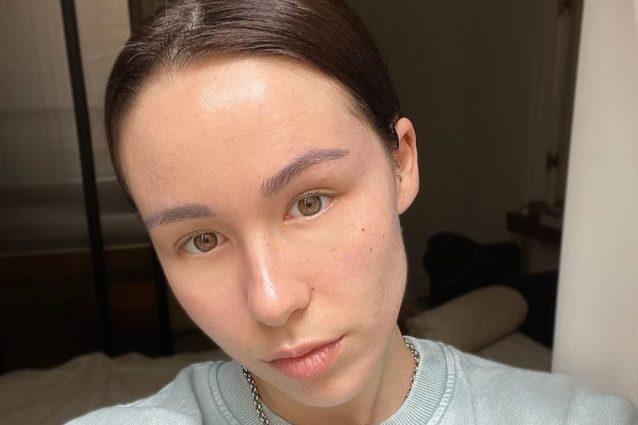 AURORA ramazzotti acne