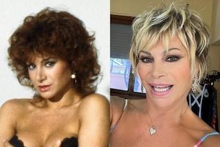 Carmen Russo prima e dopo la chirurgia, le foto della trasformazione