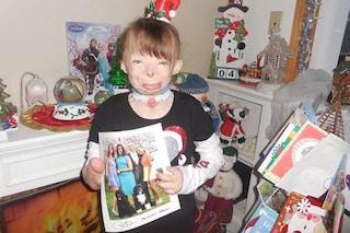Il regalo natalizio di Beyoncé alla bambina di 8 anni sfigurata dopo un incendio