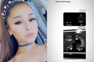 """""""Terribile"""": Ariana Grande e gli effetti del disturbo da stress post traumatico sul suo cervello"""