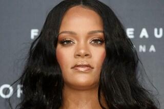"""Rihanna ha avuto un incidente: """"Lividi sul viso ma sta già guarendo"""""""