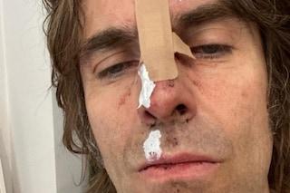 """Incidente per Liam Gallagher: """"Sono caduto dall'elicottero"""", la foto con il volto tumefatto"""