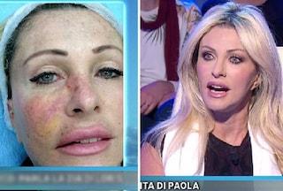 """Paola Ferrari dopo l'asportazione del tumore: """"Mi avrebbe mangiato il viso"""""""
