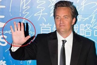 """""""Matthew Perry ha un dito mozzato"""": le curiosità mai svelate delle star (FOTO)"""