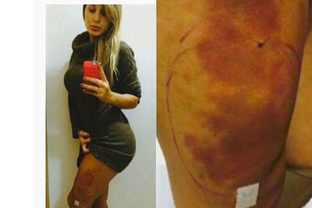 Le gambe e i glutei di Andressa prima dell'intervento