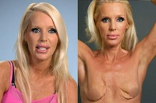 La storia di Heather, perde il lavoro perché un virus le ha mangiato il seno