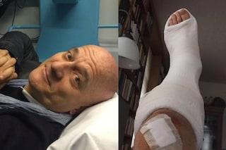 Incidente in moto per Claudio Bisio: gamba ingessata per il giudice di Italia's Got Talent