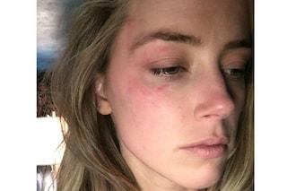 """Amber Heard accusa Johnny Depp: """"Mi picchiava"""" e mostra le foto dei lividi"""