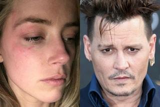 """Amber Heard e le foto dei danni che Depp avrebbe provocato dopo una lite: """"Ho paura"""""""