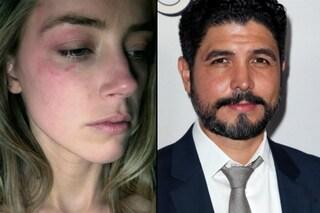 """L'ex fidanzato di Amber Heard: """"Non sta mentendo, le sue accuse contro Depp sono gravi"""""""