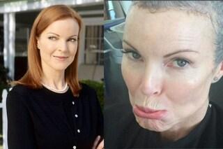 """Marcia Cross di 'Desperate Housewives' ha avuto il cancro: """"Ho perso i capelli, ma sono viva"""""""