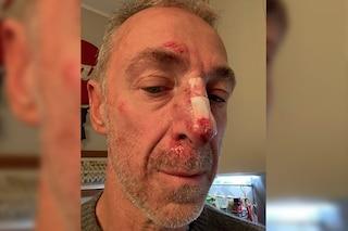 """Linus: """"Tre punti e naso rotto, sembro Rocky Balboa"""""""