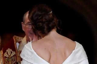 """Eugenie di York, che alle nozze reali ha mostrato la cicatrice sulla schiena: """"Per me fu un trauma"""""""