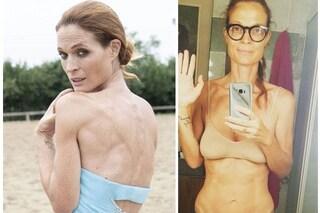 """Jane Alexander: """"Non sono anoressica, ho la candida intestinale. Basta insulti su malattie serie"""""""