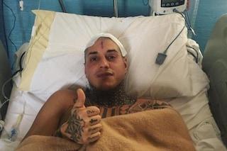 """La prima foto di Francesco Chiofalo dopo l'intervento: """"Ce l'ho fatta, sto bene"""""""
