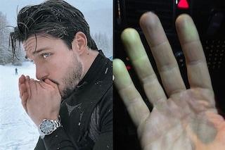 """Andrea Dal Corso: """"Ho sofferto della sindrome di Raynaud, avevo forti dolori alle dita"""""""