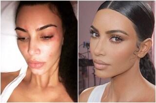 Kim Kardashian si mostra senza trucco e con i segni della psoriasi sul viso
