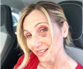 """Incidente per Lorella Cuccarini, che mostra il volto tumefatto: """"Schiantarsi per colpa di una buca"""""""