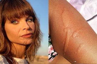 """Disavventura per Alessandra Amoroso, la cantante è stata punta da una medusa: """"Amore a prima vista"""""""