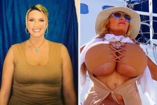 Com'era Allegra Cole prima dell'operazione, le foto di quando non aveva la quindicesima di seno