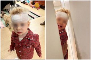 """""""Un po' Shining un po' Rambo"""", le foto di Leone figlio dei Ferragnez dopo l'incidente"""