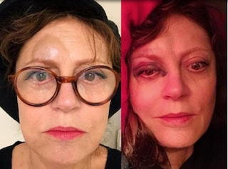 """Incidente per Susan Sarandon: """"Caduta, commozione cerebrale e naso fratturato"""""""