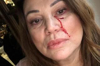 Serena Grandi con il volto insanguinato su Instagram, tutto per un film contro il femminicidio