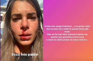 """Giada Giovanelli sanguina dal naso: """"Ecco mio padre, mi sono rotta di starmene zitta"""""""