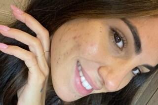 """Giulia De Lellis e i problemi con l'acne: """"Faccio fatica a guardarmi allo specchio così"""""""