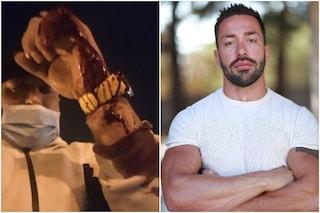 """Accoltellato Michael De Giorgio, ex di Temptation Island: """"Ferito con le forbici, è stata la mia ex"""""""
