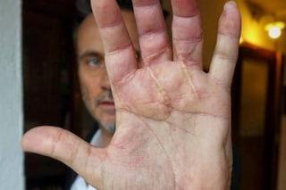 """Ecco la mano di Nek dopo l'incidente con la sega circolare: """"La sento rinascere"""""""
