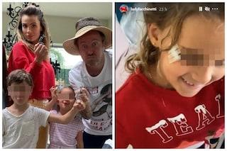 """Infortunio per la figlia di Francesco Facchinetti, il dolce gesto del fratello: """"Amore infinito"""""""