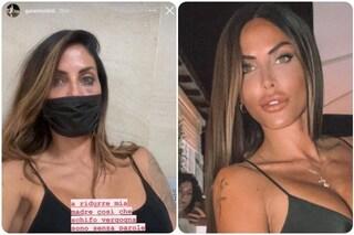 """Guendalina Tavassi con un occhio nero, la figlia: """"Ridurre mia madre così, che vergogna"""""""