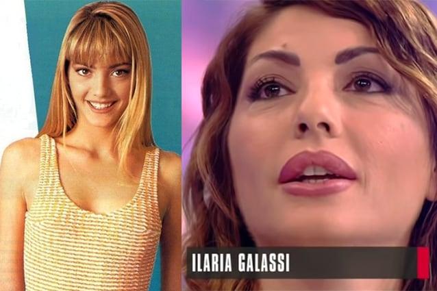 """Ilaria Galassi e il ritocco 22 anni dopo 'Non è la Rai': """"Ho gonfiato la bocca per l'età"""""""